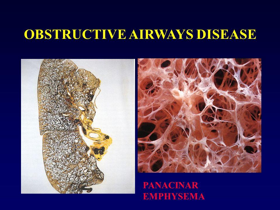 OBSTRUCTIVE AIRWAYS DISEASE PANACINAR EMPHYSEMA