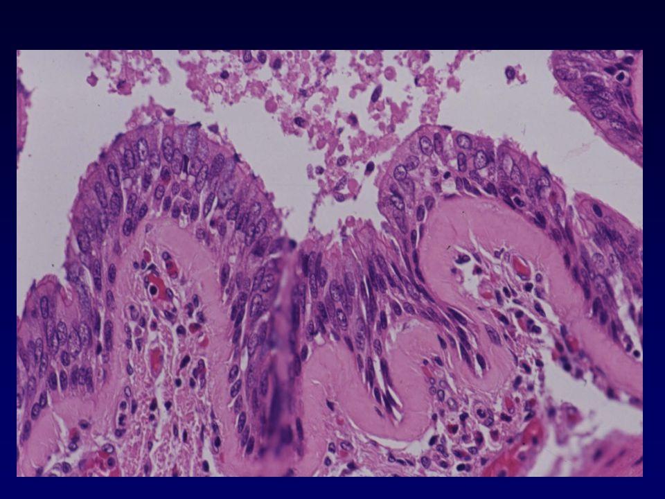 SMOKING-ASSOCIATED INTERSTITIAL LUNG DISEASE Respiratory-bronchiolitis (RB) Desquamative interstitial pneumonia (DIP) Langerhan's cell histiocytosis (LCH) Eosinophilic granuloma (EG) Histiocytosis X (HX)