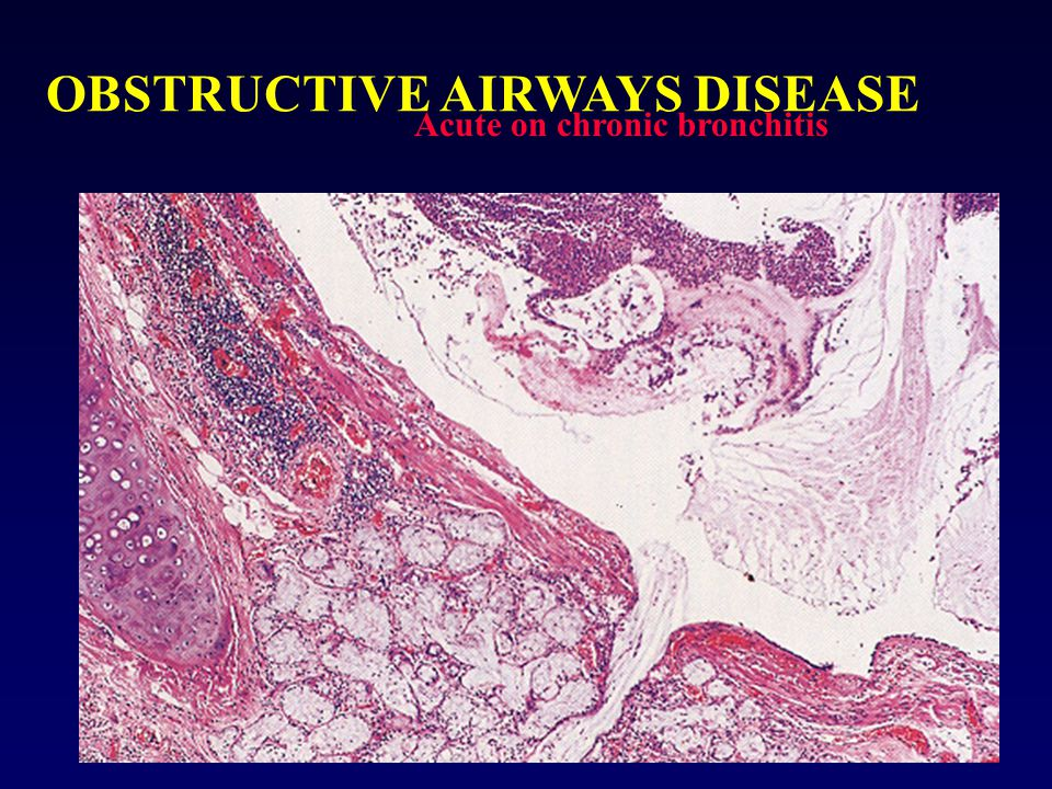 OBSTRUCTIVE AIRWAYS DISEASE Loss of airway 'tapering' in chronic bronchitis