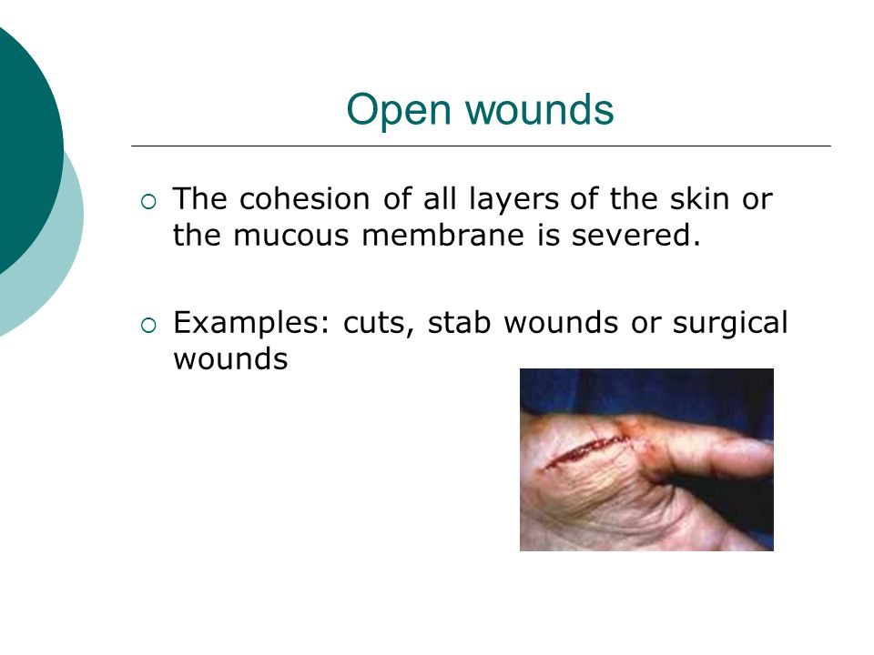Open wounds  The cohesion of all layers of the skin or the mucous membrane is severed.  Examples: cuts, stab wounds or surgical wounds