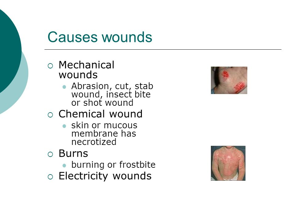 Causes wounds  Mechanical wounds Abrasion, cut, stab wound, insect bite or shot wound  Chemical wound skin or mucous membrane has necrotized  Burns