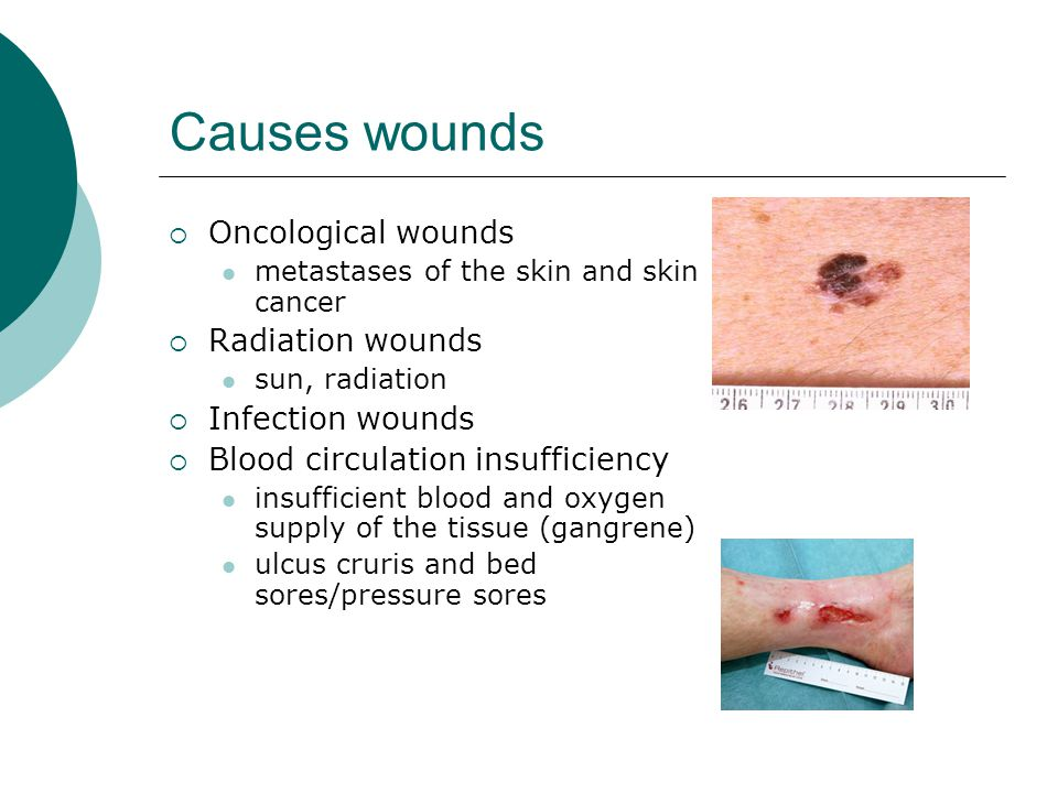 Causes wounds  Oncological wounds metastases of the skin and skin cancer  Radiation wounds sun, radiation  Infection wounds  Blood circulation ins