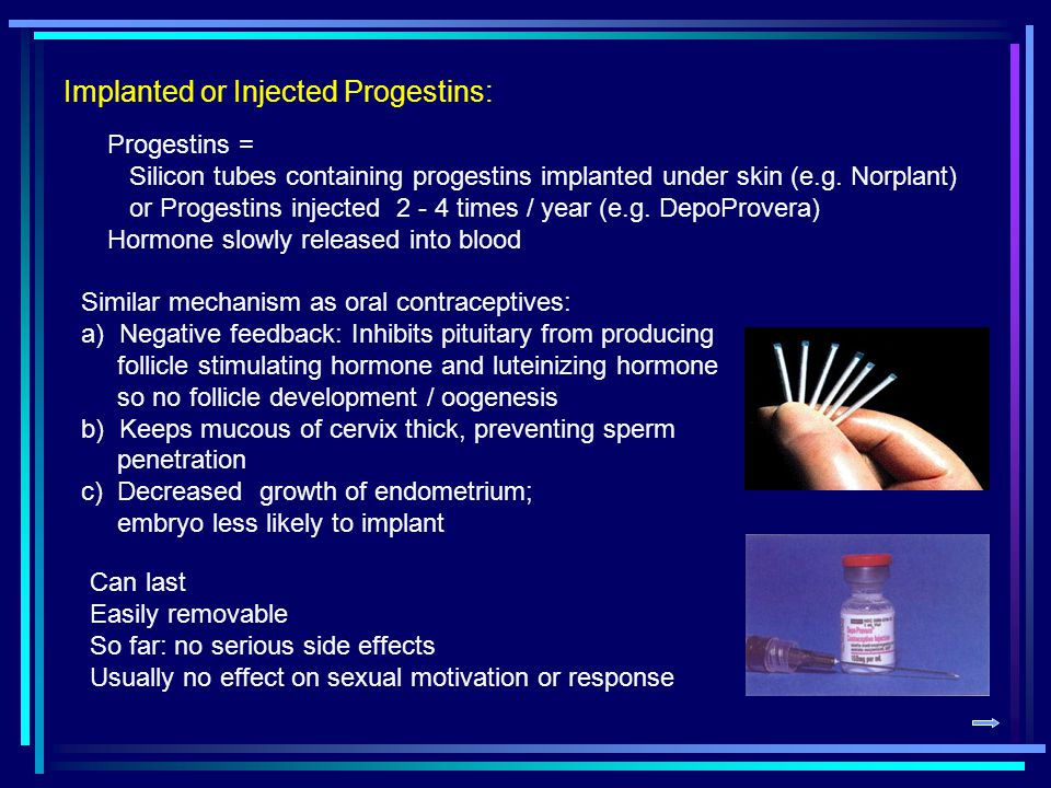 Implanted or Injected Progestins: Progestins = Silicon tubes containing progestins implanted under skin (e.g.
