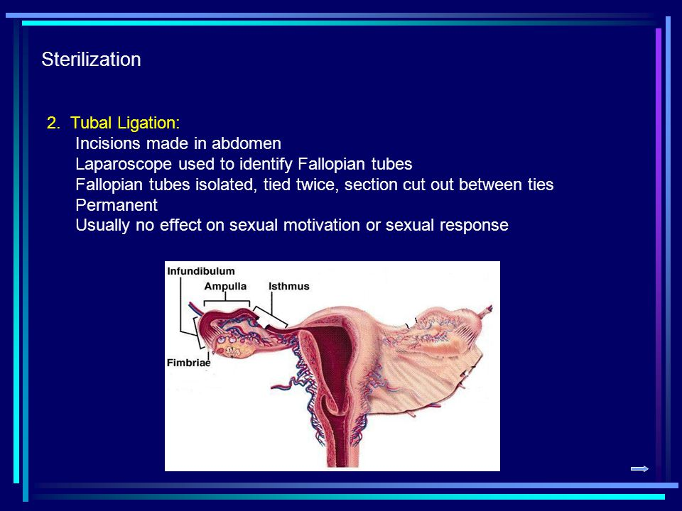 Sterilization 2.