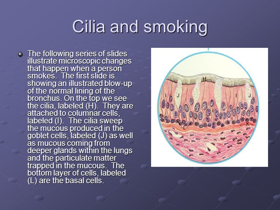 Cilia and smoking The following series of slides illustrate microscopic changes that happen when a person smokes.
