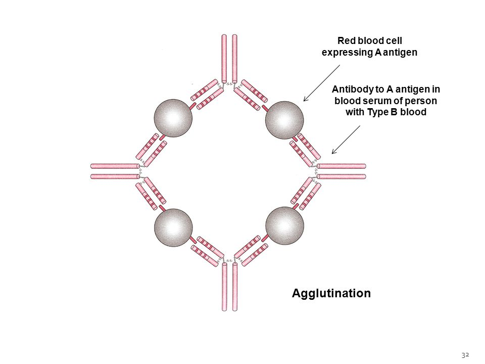 32 Agglutination Red blood cell expressing A antigen Antibody to A antigen in blood serum of person with Type B blood