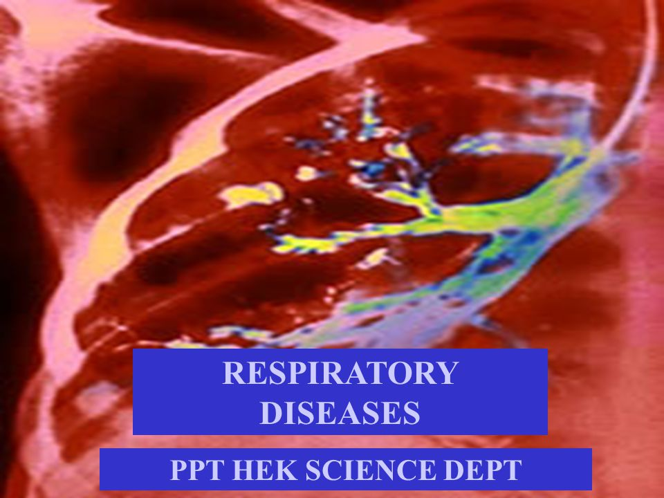 RESPIRATORY DISEASES PPT HEK SCIENCE DEPT