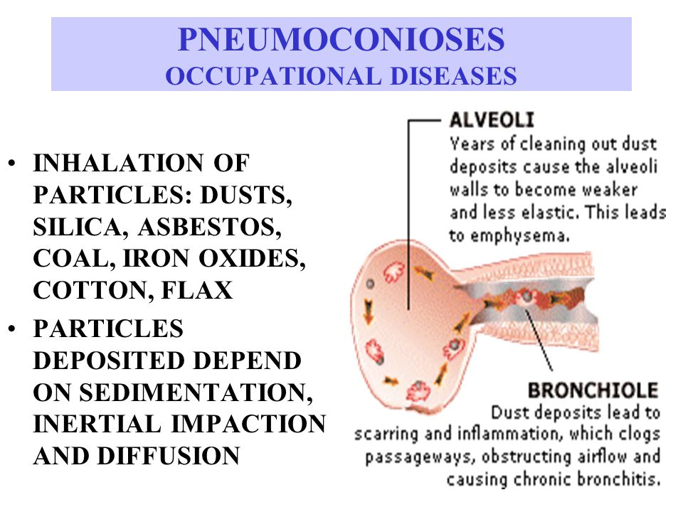 PNEUMOCONIOSES OCCUPATIONAL DISEASES INHALATION OF PARTICLES: DUSTS, SILICA, ASBESTOS, COAL, IRON OXIDES, COTTON, FLAX PARTICLES DEPOSITED DEPEND ON SEDIMENTATION, INERTIAL IMPACTION AND DIFFUSION