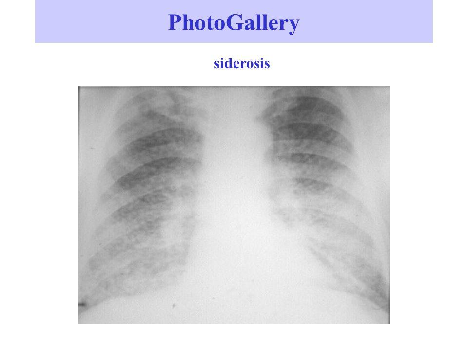 PhotoGallery siderosis