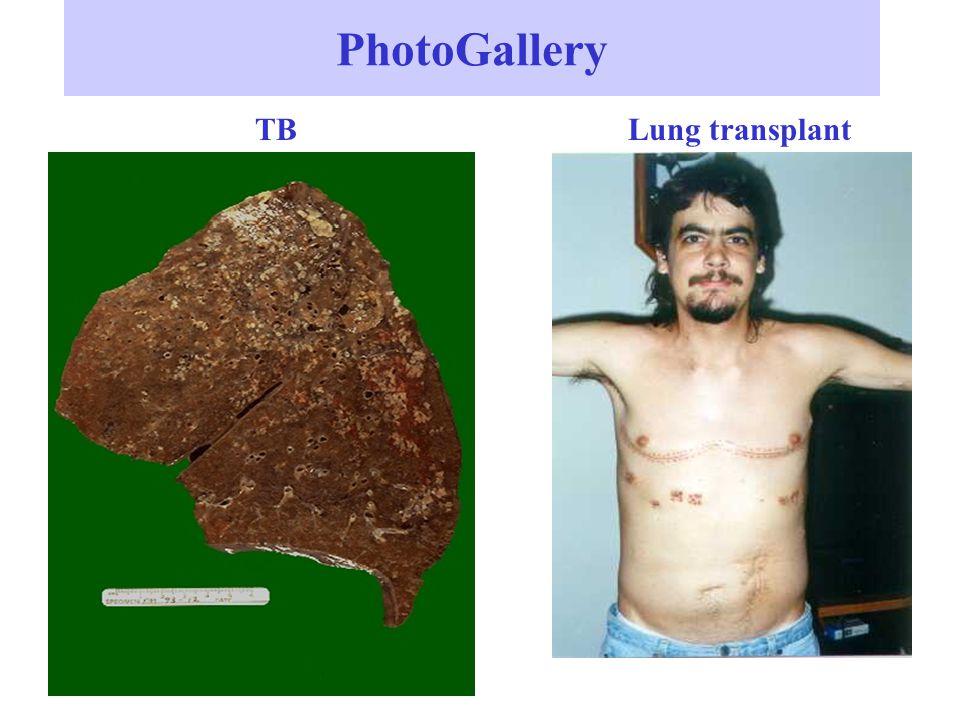 PhotoGallery TBLung transplant