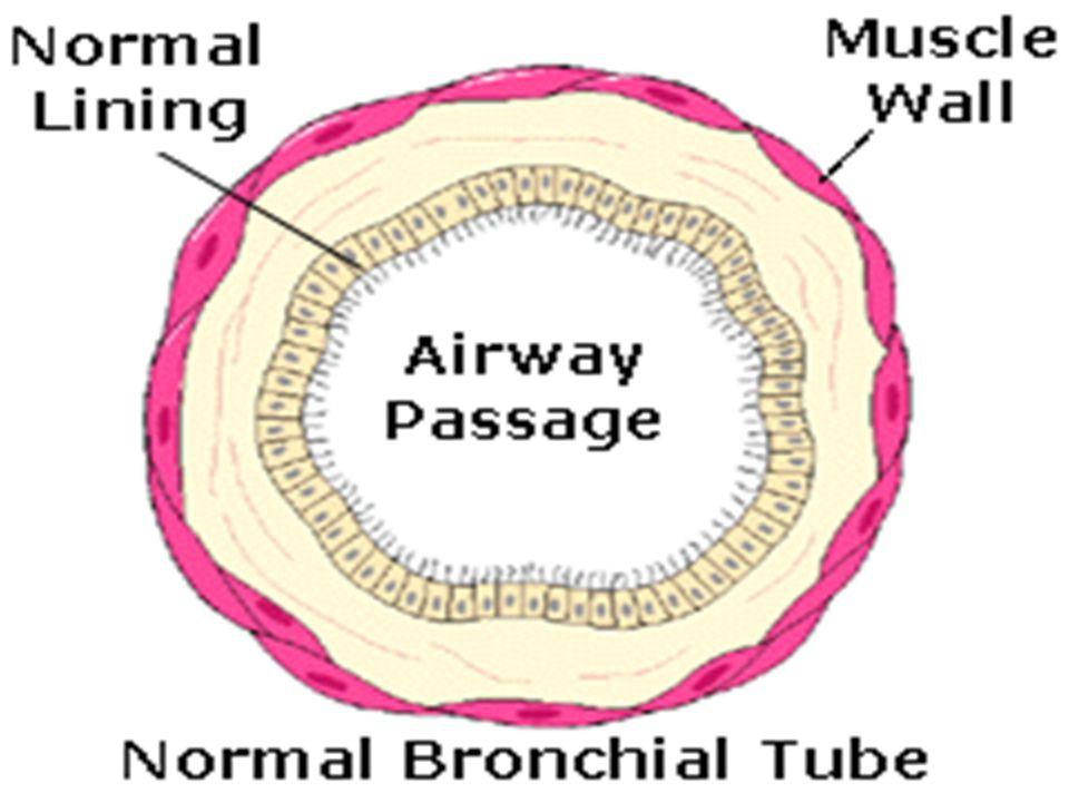 PhotoGallery CF bronchiectasis