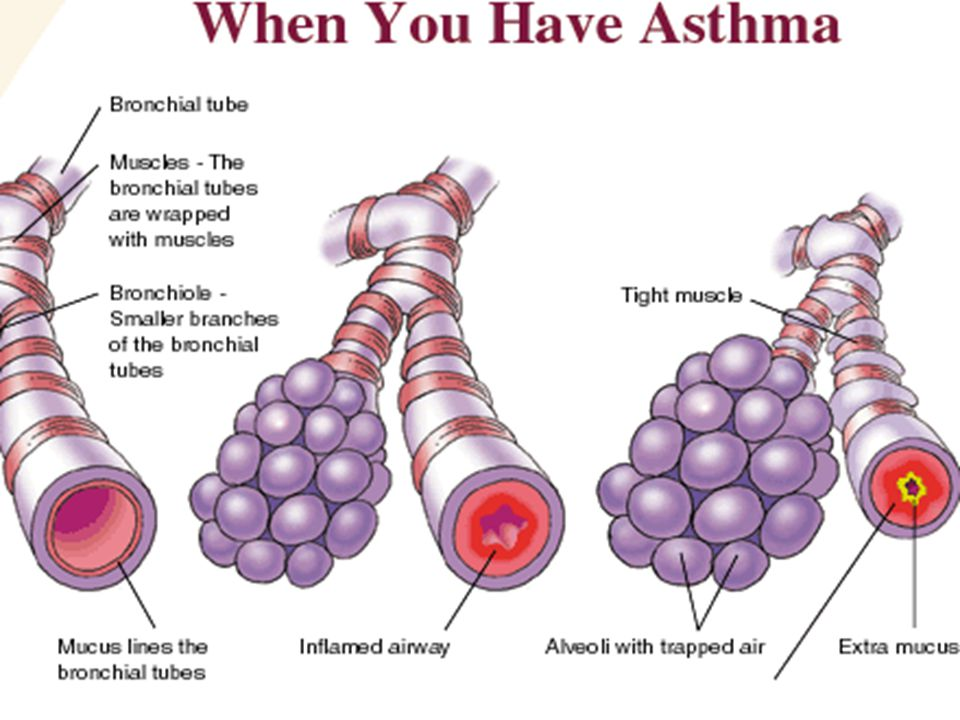 EMPHYSEMA CHRONIC LUNG DISEASE IN WHICH AIR SACS DEGENERATE UNTIL ELASTIC FIBERS ARE DESTROYED.