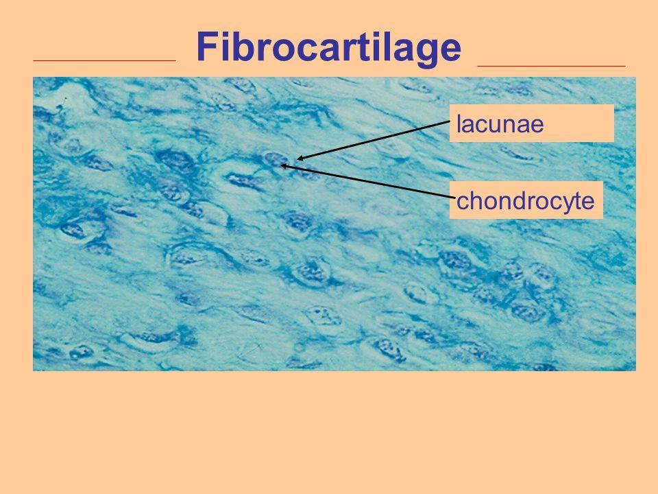 Fibrocartilage lacunae chondrocyte