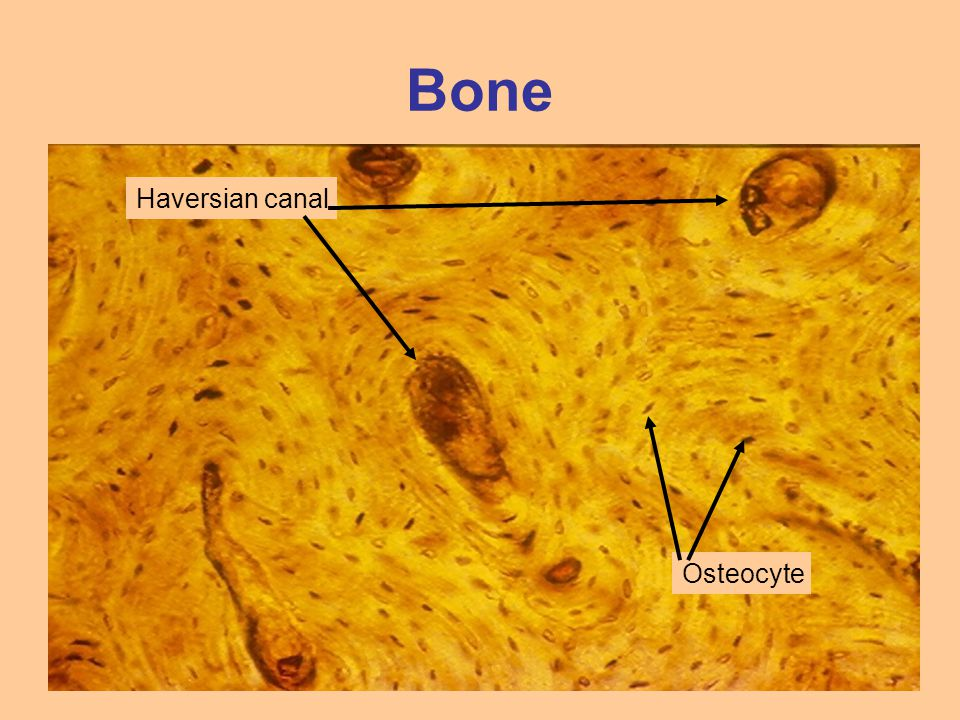 Bone Haversian canal Osteocyte