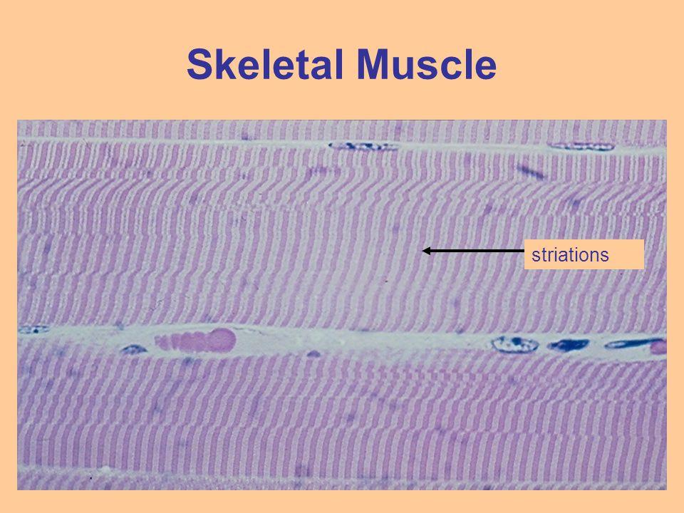 Skeletal Muscle striations