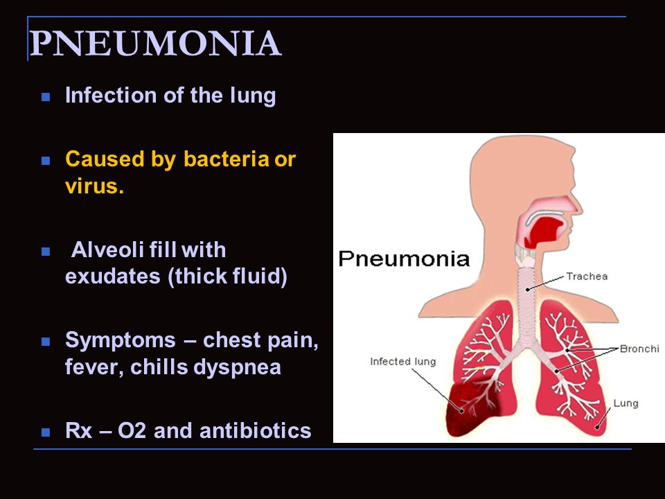 PNEUMONIA Infection of the lung Caused by bacteria or virus. Alveoli fill with exudates (thick fluid) Symptoms – chest pain, fever, chills dyspnea Rx