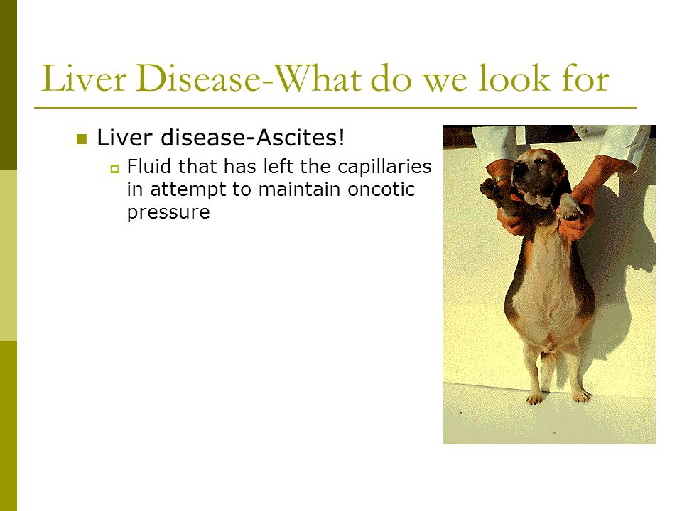Liver Disease-What do we look for Liver disease-Ascites.