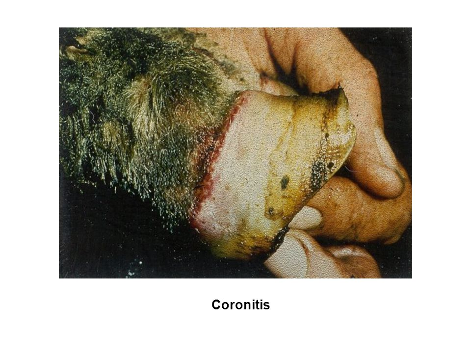 Coronitis