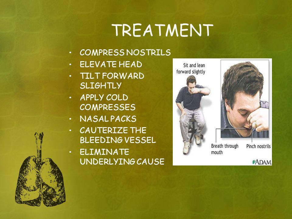TREATMENT COMPRESS NOSTRILS ELEVATE HEAD TILT FORWARD SLIGHTLY APPLY COLD COMPRESSES NASAL PACKS CAUTERIZE THE BLEEDING VESSEL ELIMINATE UNDERLYING CA