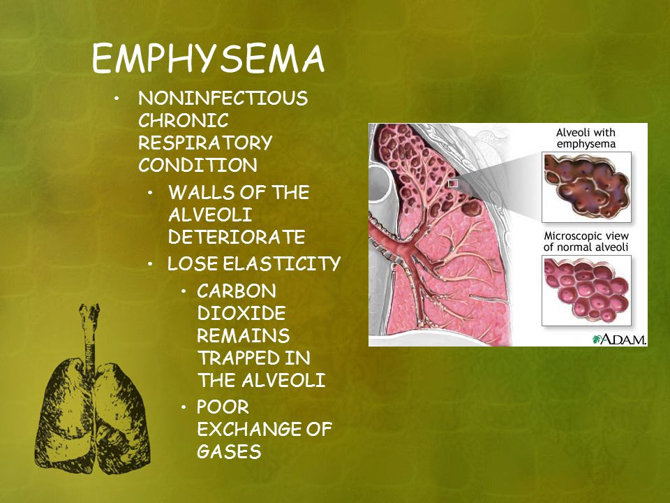 EMPHYSEMA NONINFECTIOUS CHRONIC RESPIRATORY CONDITION WALLS OF THE ALVEOLI DETERIORATE LOSE ELASTICITY CARBON DIOXIDE REMAINS TRAPPED IN THE ALVEOLI POOR EXCHANGE OF GASES