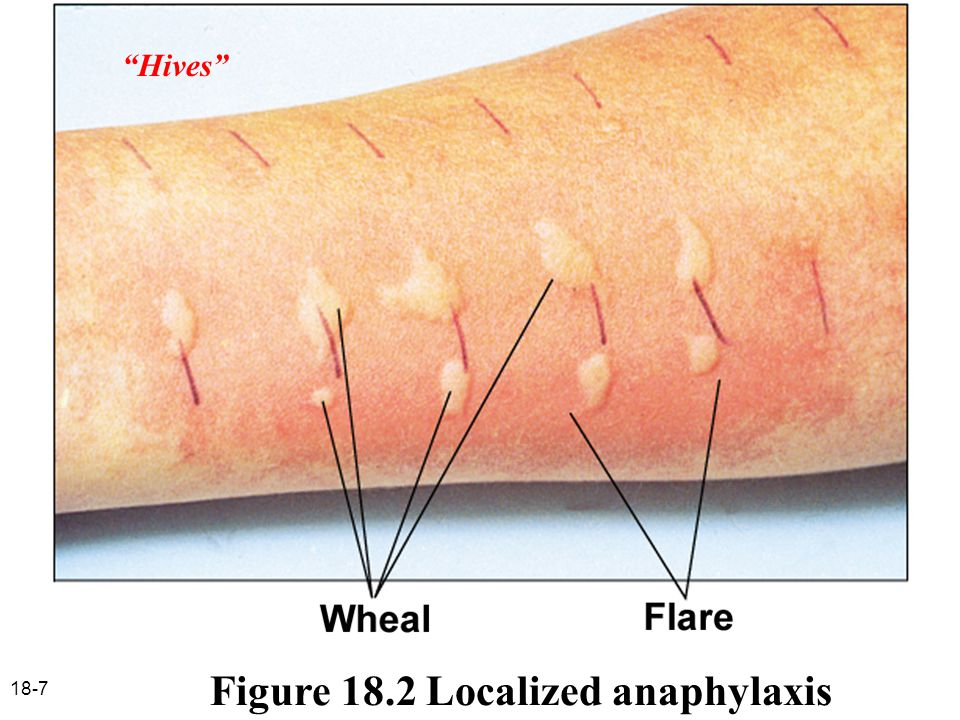 18-8 Hives – allergic skin reaction characterized by formation of a wheal and flare blocked by antihistamines Hay fever – antigen is inhaled, causing localized anaphylaxis in tissues below mucous membranes blocked by antihistamines Asthma – localized anaphylaxis causes increased mucous secretion, bronchial spasms non-histamine mediators primarily responsible; antihistamines not effective albuterol – bronchodilator steroids – inhibit inflammatory reaction