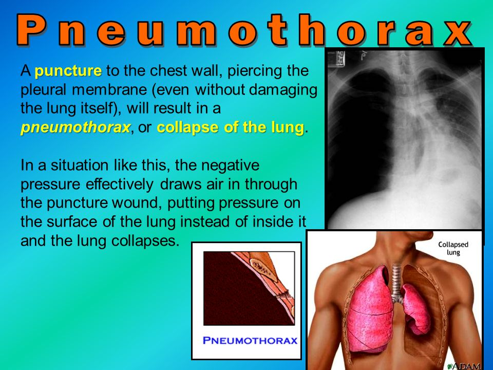 puncture pneumothoraxcollapse of the lung A puncture to the chest wall, piercing the pleural membrane (even without damaging the lung itself), will re