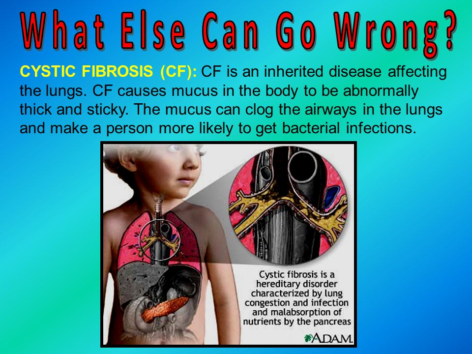 CYSTIC FIBROSIS (CF): CF is an inherited disease affecting the lungs. CF causes mucus in the body to be abnormally thick and sticky. The mucus can clo