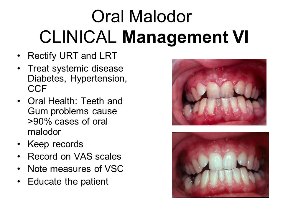 Oral Malodor CLINICAL Management VI Rectify URT and LRT Treat systemic disease Diabetes, Hypertension, CCF Oral Health: Teeth and Gum problems cause >90% cases of oral malodor Keep records Record on VAS scales Note measures of VSC Educate the patient