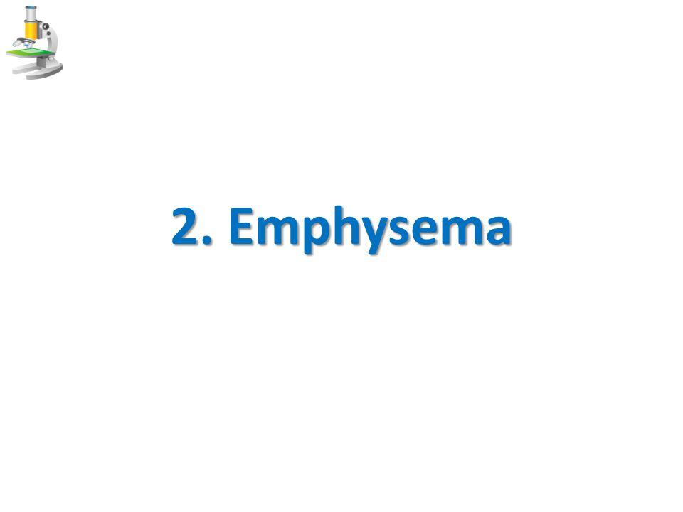 2. Emphysema