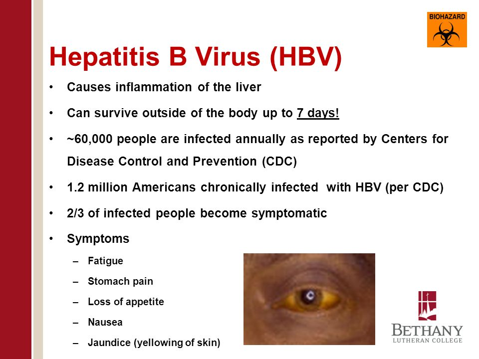 Hepatitis B Vaccine Available Vaccine protects people from HBV infection with a 95% effectiveness HBV vaccination is given in three doses Possible side effects of vaccination Pain, itching, swelling at site of injection Flu-like symptoms Allergic reaction to the yeast component of the vaccine