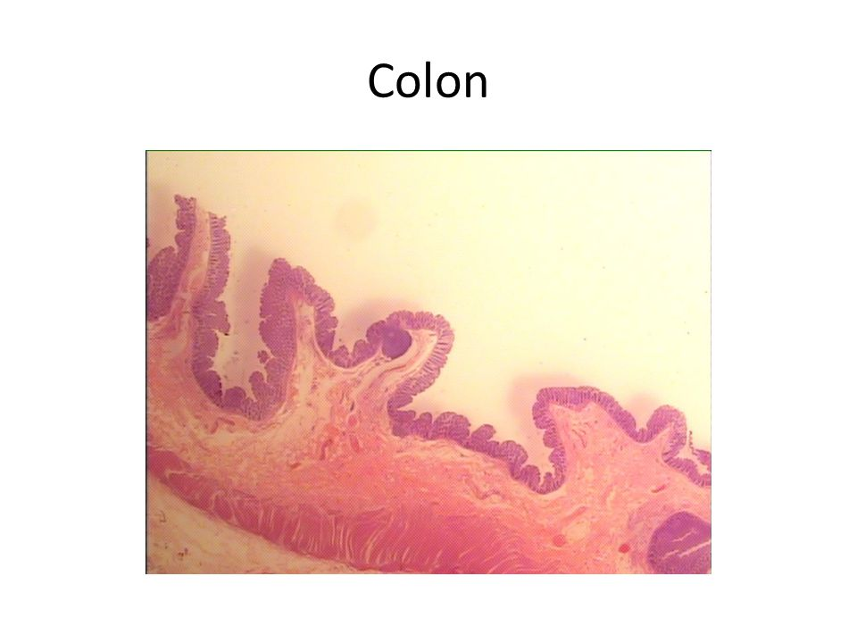 Villus Goblet Cells The villi of the colon are blending together and are full of goblet cells