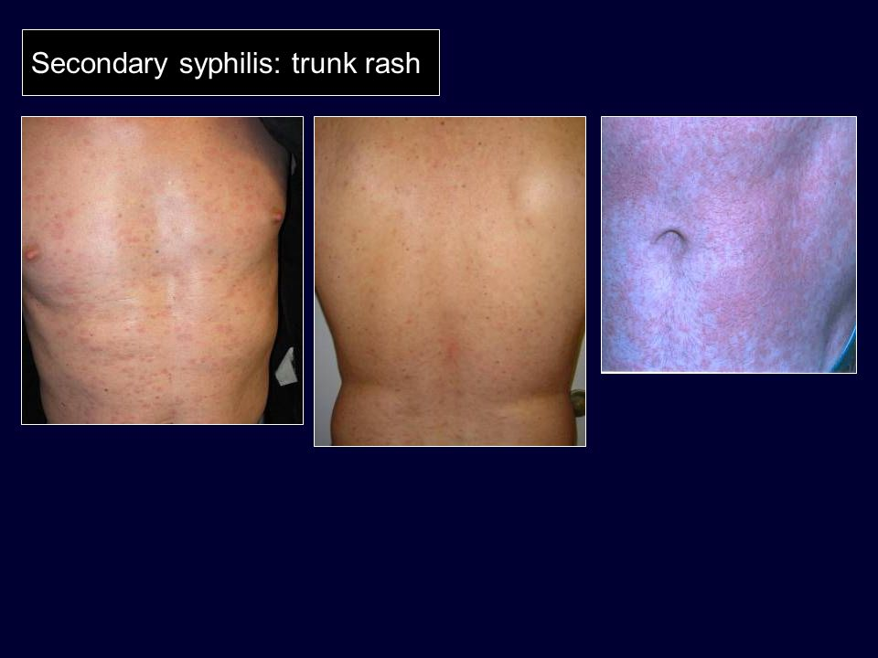 Secondary syphilis: trunk rash