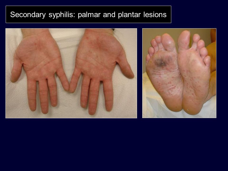 Secondary syphilis: palmar and plantar lesions