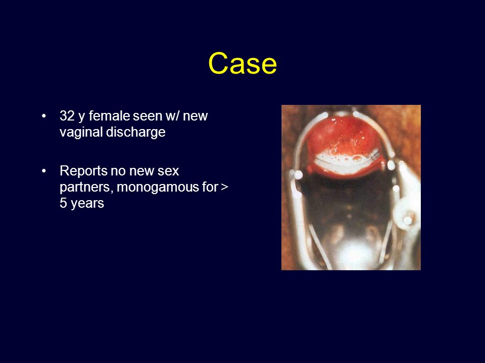 Case 32 y female seen w/ new vaginal discharge Reports no new sex partners, monogamous for > 5 years