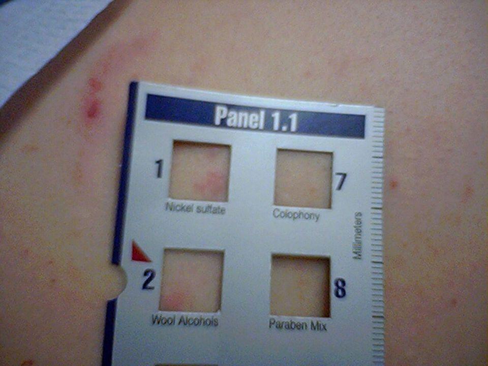 Local anaestetics l Diagnostic procedures - skin tests – risk of false positivity - provocation test