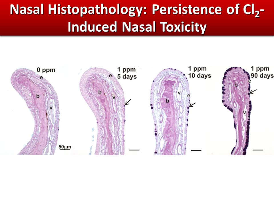 Nasal Histopathology: Persistence of Cl 2 - Induced Nasal Toxicity