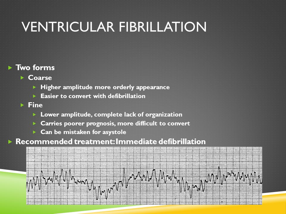 VENTRICULAR FIBRILLATION  Two forms  Coarse  Higher amplitude more orderly appearance  Easier to convert with defibrillation  Fine  Lower amplit