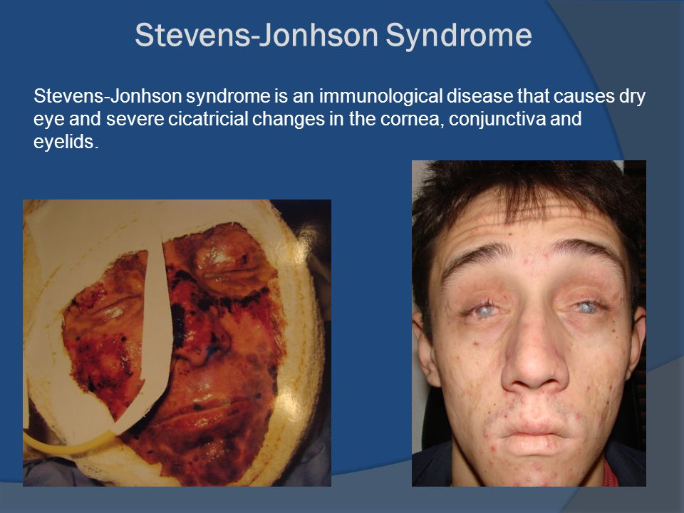 Stevens-Jonhson Syndrome Stevens-Jonhson syndrome is an immunological disease that causes dry eye and severe cicatricial changes in the cornea, conjunctiva and eyelids.
