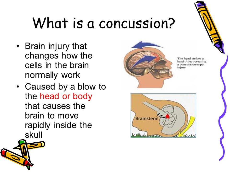 What is a concussion? Brain injury that changes how the cells in the brain normally work Caused by a blow to the head or body that causes the brain to