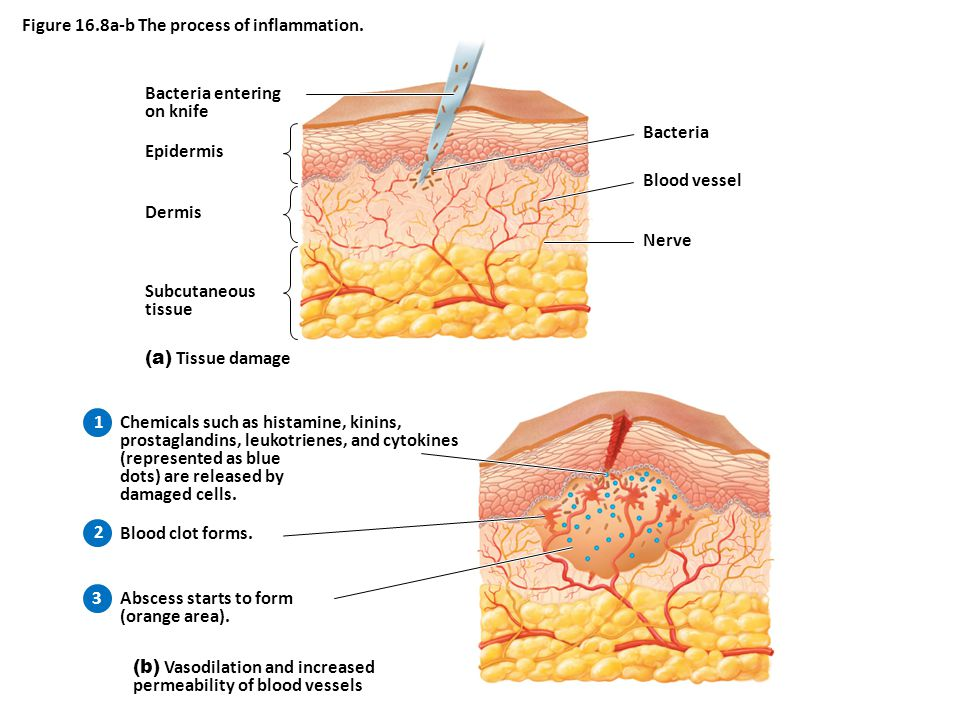 Bacteria entering on knife Epidermis Dermis Subcutaneous tissue (a) Tissue damage Bacteria Blood vessel Nerve Figure 16.8a-b The process of inflammation.