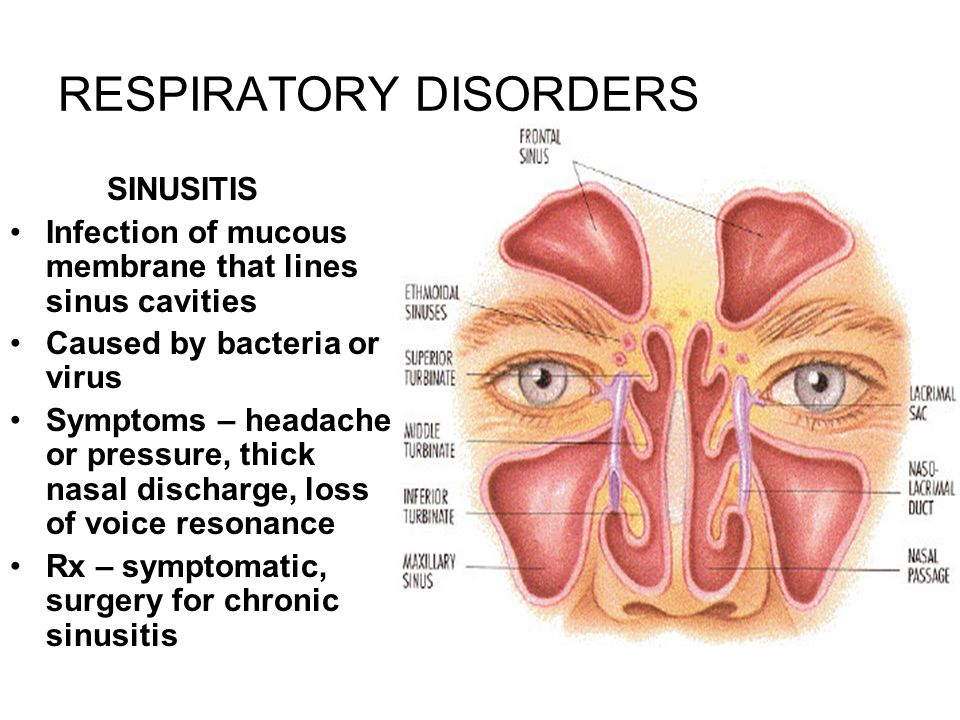 RESPIRATORY DISORDERS SINUSITIS Infection of mucous membrane that lines sinus cavities Caused by bacteria or virus Symptoms – headache or pressure, thick nasal discharge, loss of voice resonance Rx – symptomatic, surgery for chronic sinusitis