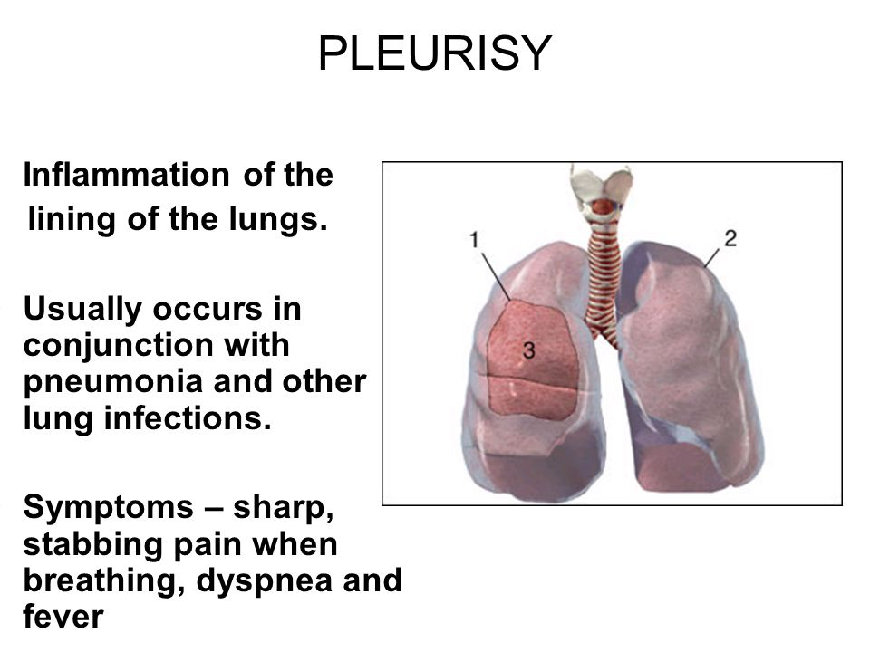PLEURISY Inflammation of the lining of the lungs. Usually occurs in conjunction with pneumonia and other lung infections. Symptoms – sharp, stabbing p