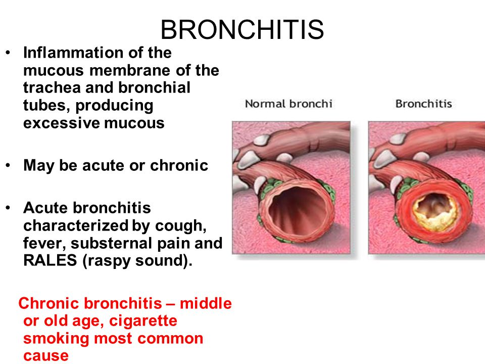 BRONCHITIS Inflammation of the mucous membrane of the trachea and bronchial tubes, producing excessive mucous May be acute or chronic Acute bronchitis