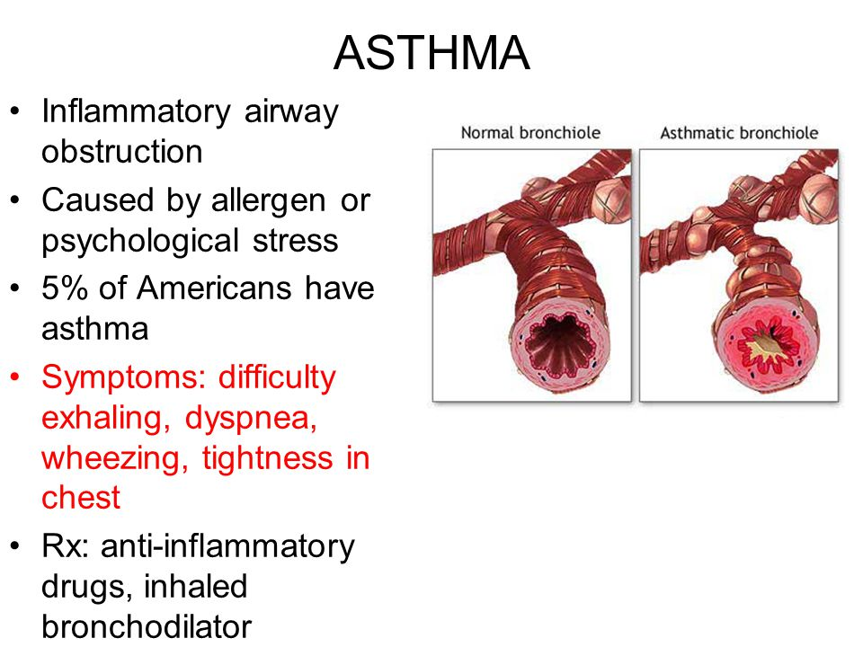 ASTHMA Inflammatory airway obstruction Caused by allergen or psychological stress 5% of Americans have asthma Symptoms: difficulty exhaling, dyspnea,