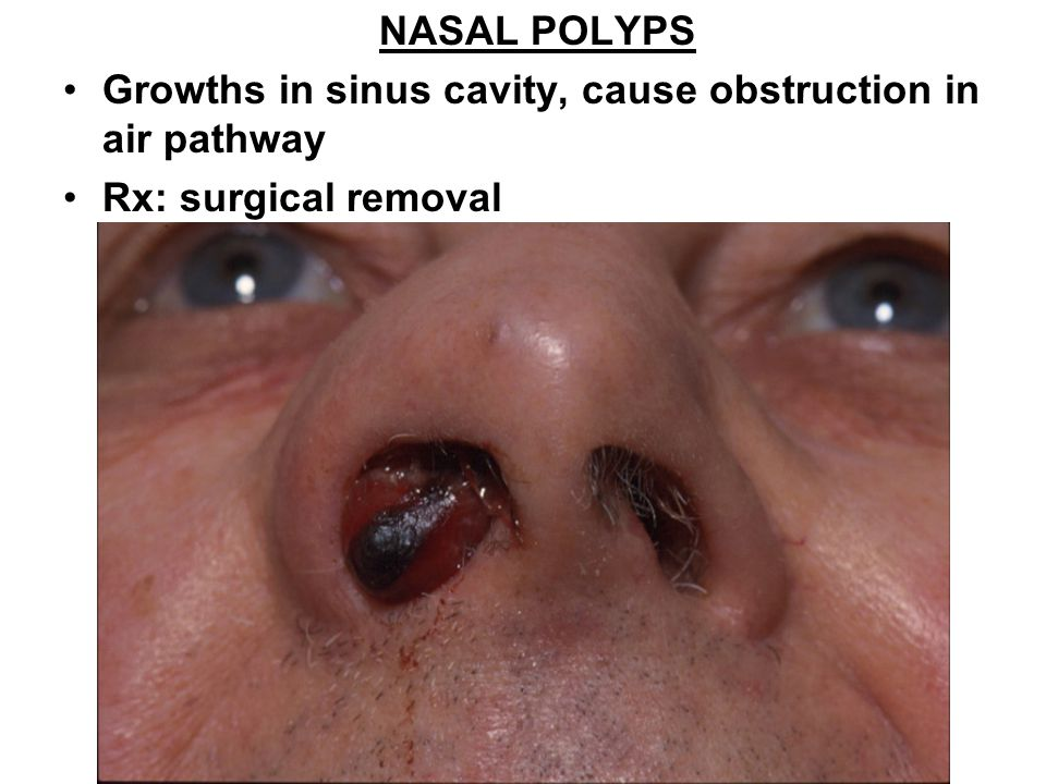 NASAL POLYPS Growths in sinus cavity, cause obstruction in air pathway Rx: surgical removal