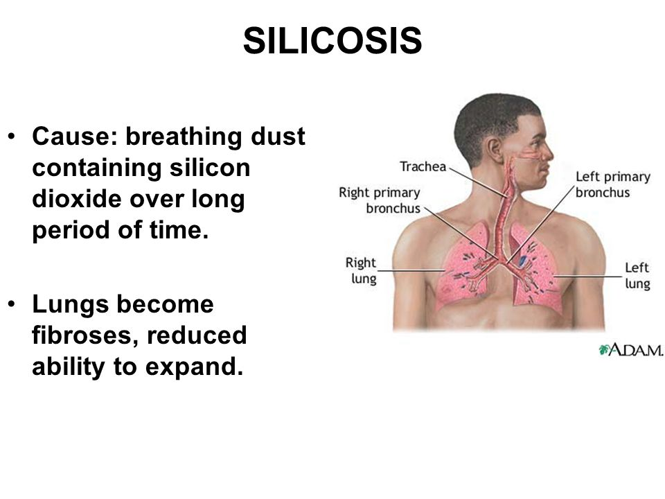 SILICOSIS Cause: breathing dust containing silicon dioxide over long period of time.