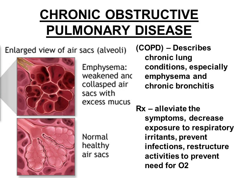 CHRONIC OBSTRUCTIVE PULMONARY DISEASE (COPD) – Describes chronic lung conditions, especially emphysema and chronic bronchitis Rx – alleviate the sympt