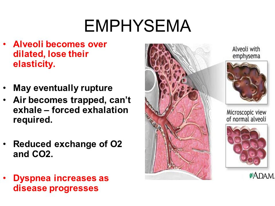 EMPHYSEMA Alveoli becomes over dilated, lose their elasticity. May eventually rupture Air becomes trapped, can't exhale – forced exhalation required.
