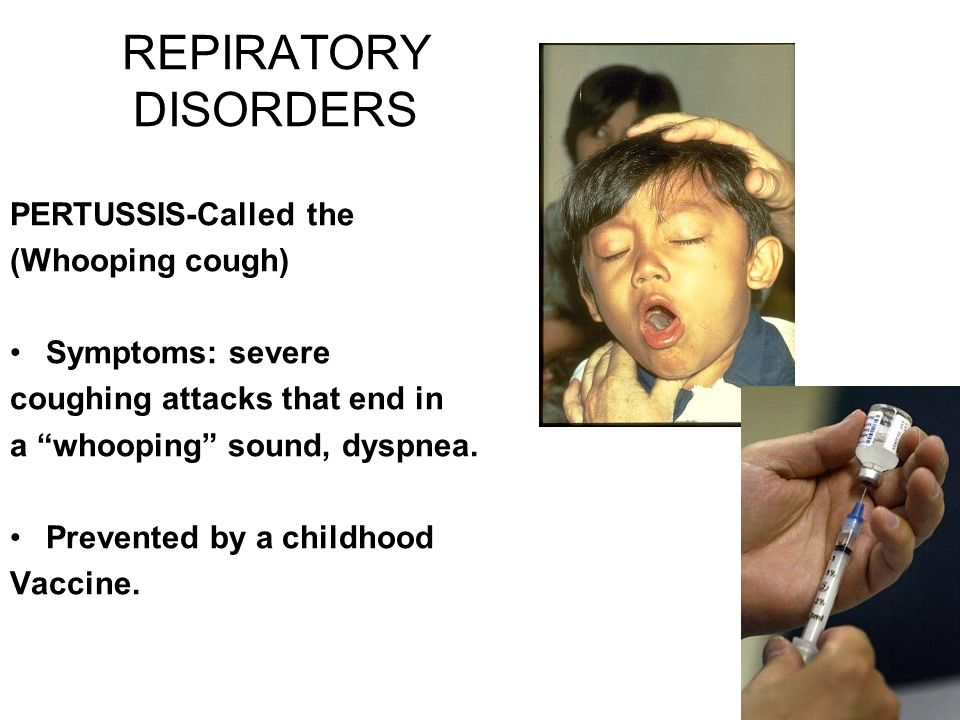 """REPIRATORY DISORDERS PERTUSSIS-Called the (Whooping cough) Symptoms: severe coughing attacks that end in a """"whooping"""" sound, dyspnea. Prevented by a c"""