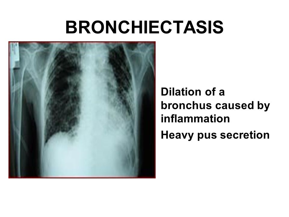 BRONCHIECTASIS Dilation of a bronchus caused by inflammation Heavy pus secretion
